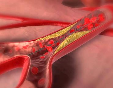 Ефективност на ангиопластика