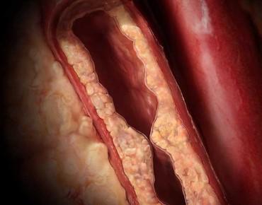 Холестерол – Вредното Полезно Вещество
