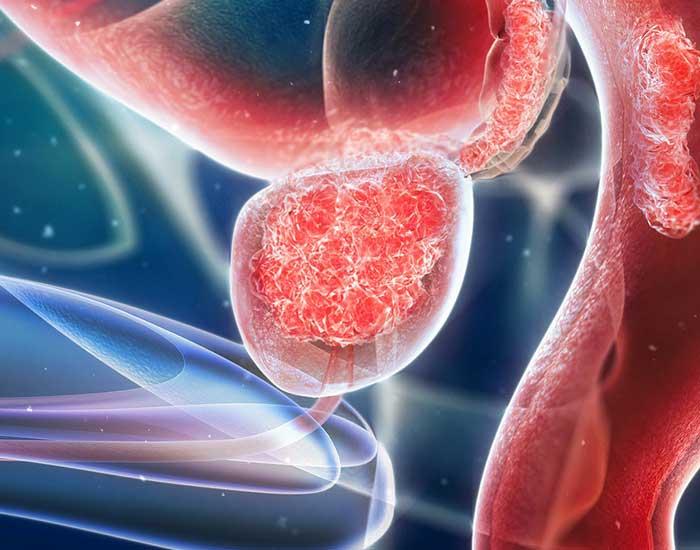 Рак на Простатата