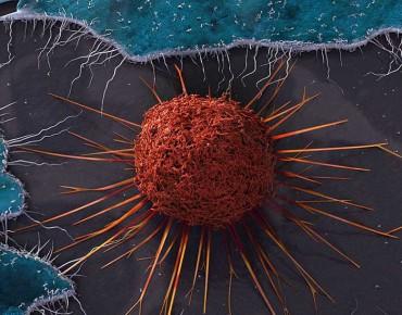 Лечение на рак от Япония